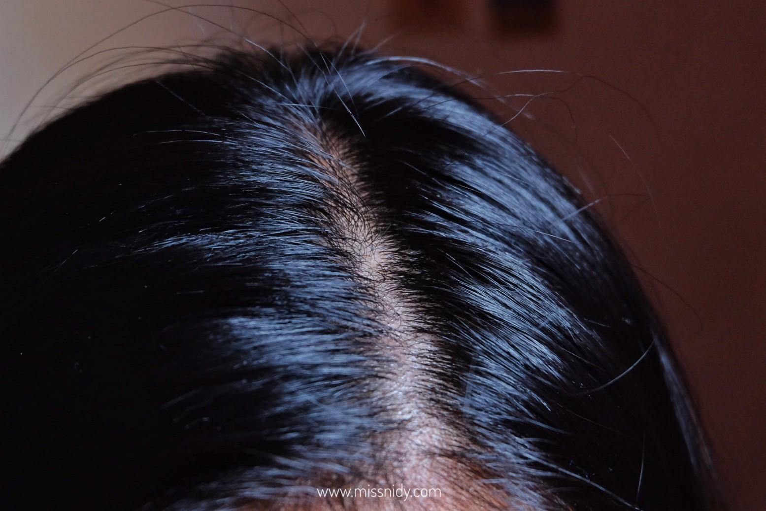 cara mengatasi rambut lepek dan rontok