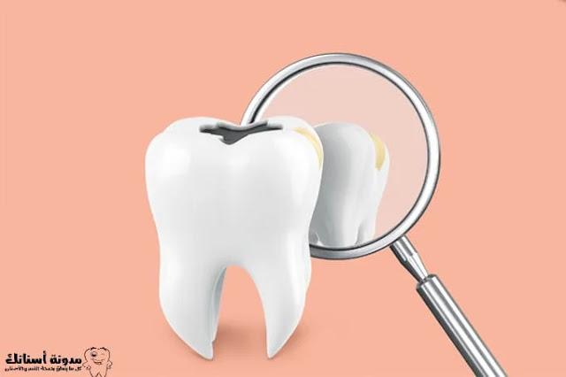 كيف أزيل تسوس الأسنان بشكل نهائي.