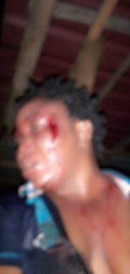 PHOTOS: Man Brags After Beating Her To Pulp, Post Her Bloody Photos