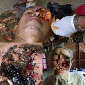 Sudah 10 Tahun Menderita Kanker, Lansia di Simpang Gaung Inhil Butuh Uluran Tangan