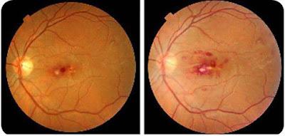 Roths_spots_retinal_bleeding