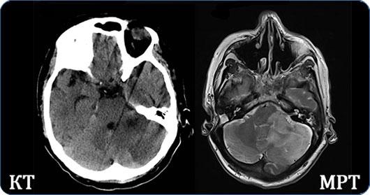 Снимки мозга на КТ и МРТ