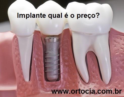 implante preço