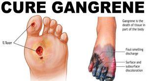 Cara Pencegahan Gangren