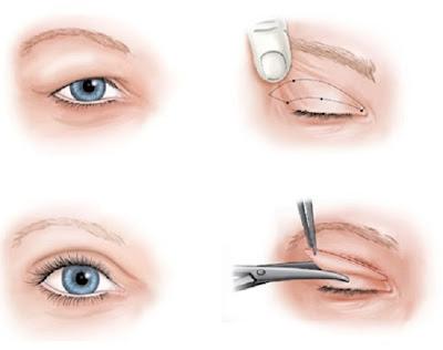 Cắt mí mắt có gây hại không
