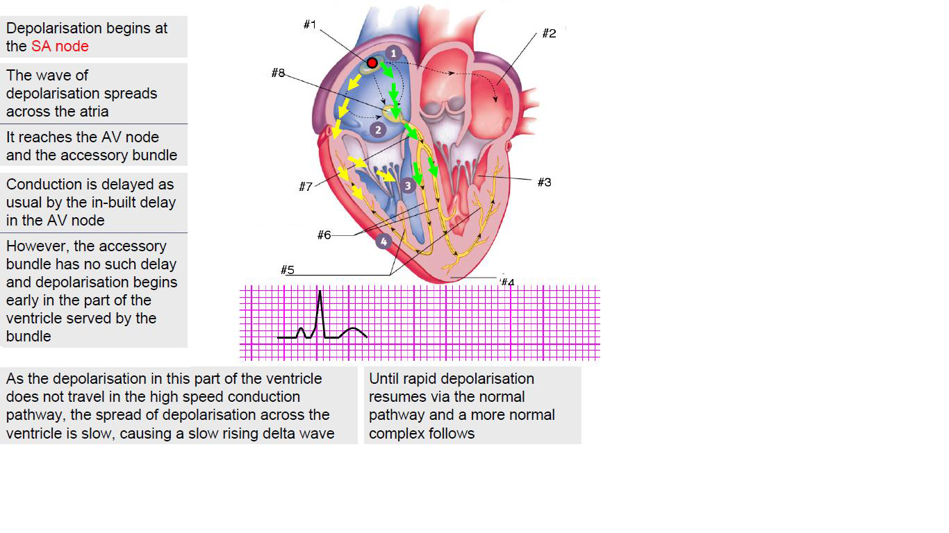 sinoatrial node diagram fujitsu halcyon wiring bundle of his cardiac action potential elsavadorla