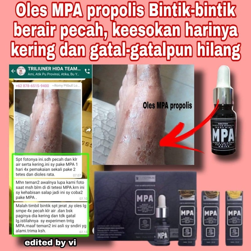 kulit gatal dan iritasi sembuh dengan mpa propolis