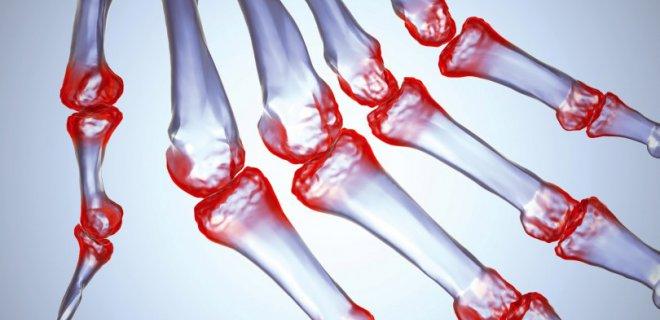 Osteomyelit sebebi, belirtileri ve tedavisi