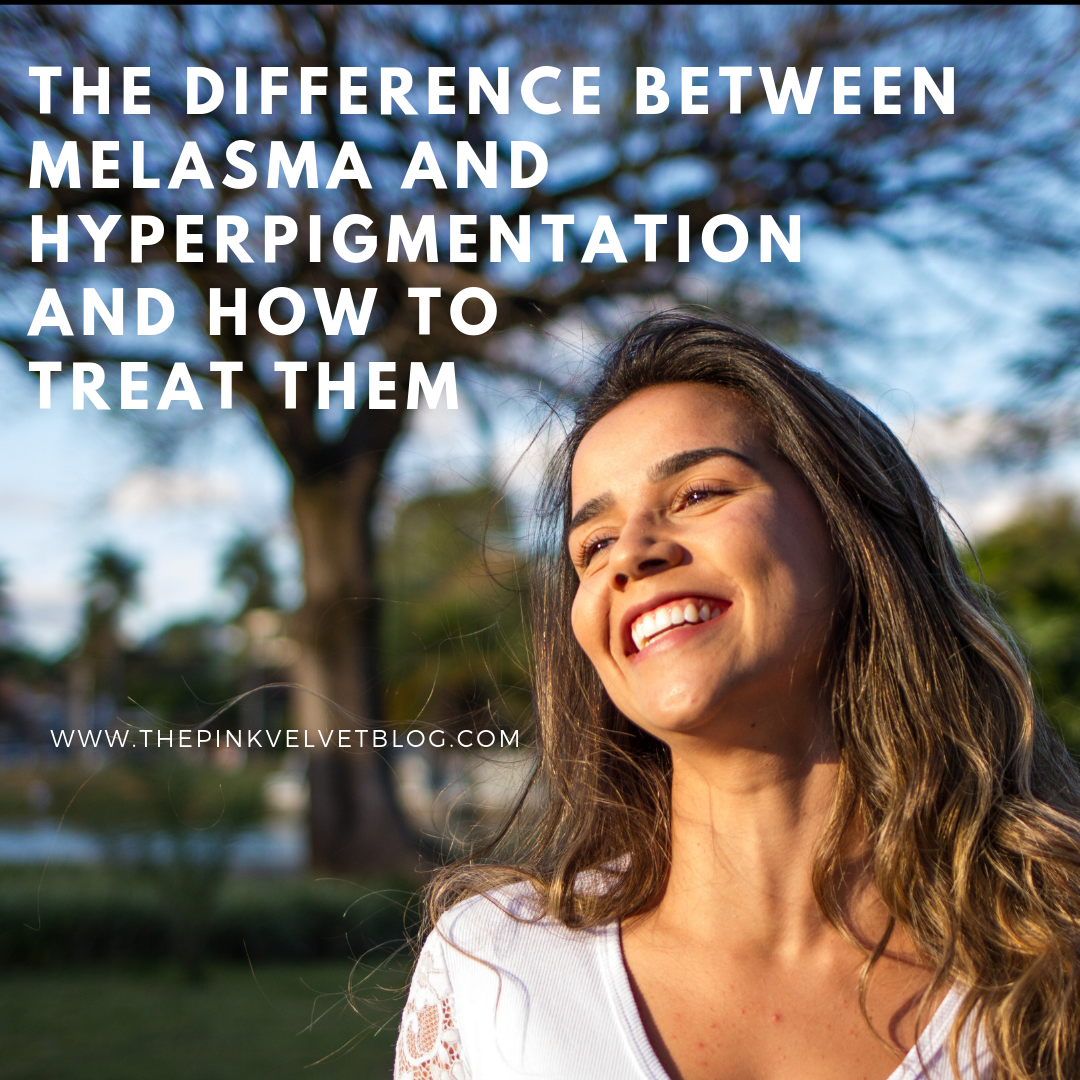 The Difference between Melasma and Hyperpigmentation and How to Treat Them
