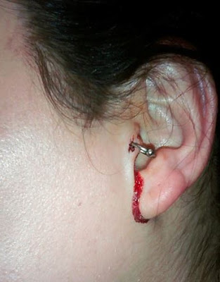 Tragus Piercing Pain Level