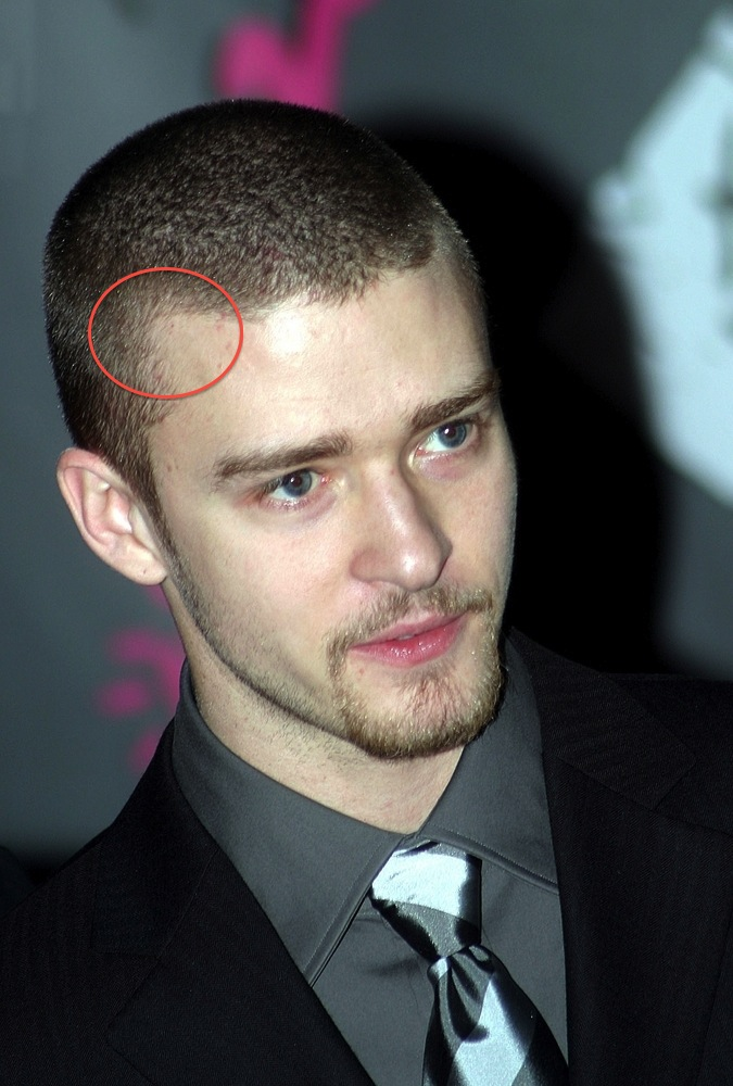 Celebrity Hair Loss: Recession Alert: Is Justin Timberlake ...
