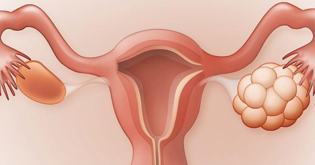 هل تكيس المبايض يمنع الحمل؟ ونصائح للتغلب على ذلك