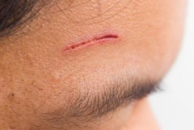 Laserasi adalah luka terbuka yang disebabkan oleh benda tajam