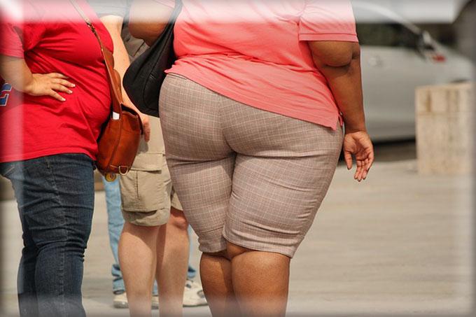 5 Penyebab Utama Obesitas Yang Perlu Anda Ketahui