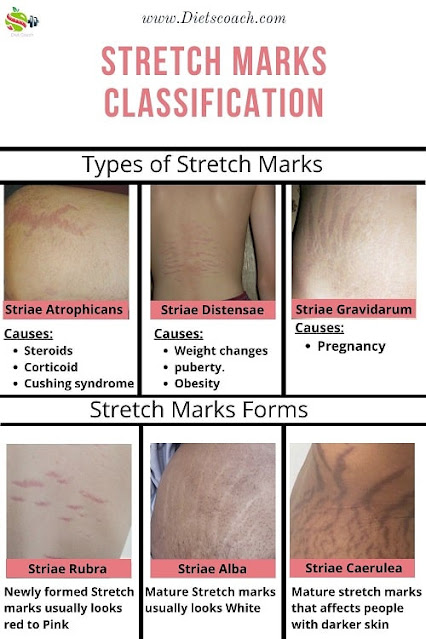 Types of Stretch Marks