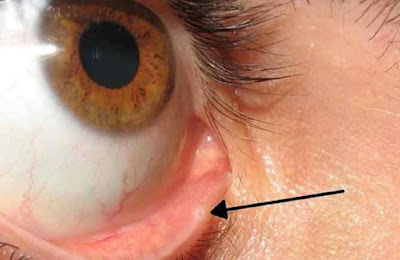 Lacrimal-punctum-you-get-a-runny-nose-after-crying