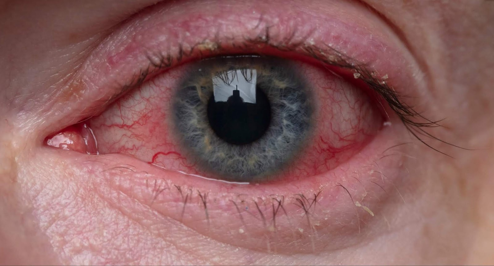 Red eye and COVID-19