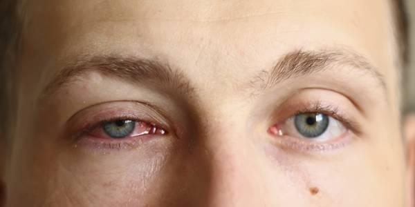 سعر ودواعي استعمال قطرة عين بيفن Bephen للعين
