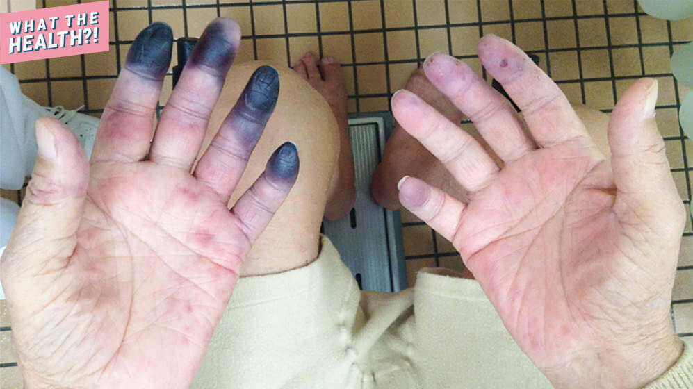 This 84-Year-Old Man's Fingers and Toes Turned Black Because of Inflammation In His Arteries
