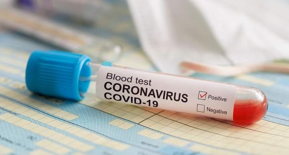 Apakah Virus Corona Lebih Berbahaya Dari TBC? Berikut Penjelasannya!