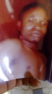 Unrecognized Victim Of Hit- And - Run Driver In Abuja Dies In The Hospital 1
