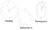 Alzheimer S Clock Draw Test Detect The Signs Of Alzheimer S Early