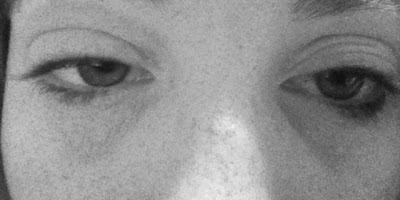 Swollen eyes caused by eczema around eyes and face