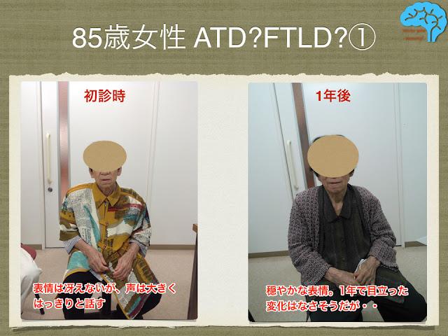 認知症患者、一年後で表情の変化はない。