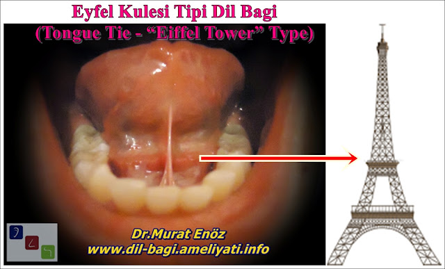 Eiffel Tower Type Tongue Tie - Eiffel Tower Type Anterior Tongue Tie - Eiffel Tower Type Lingual Frenulum - Tongue Tie Istanbul - Tongue Tie Turkey - Tongue Tie Relase Operation