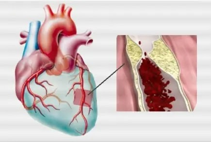 Coronary Ischemia Definition, Symptoms