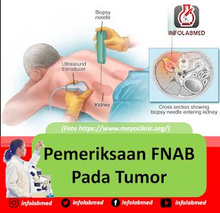 Pemeriksaan FNAB Pada Tumor