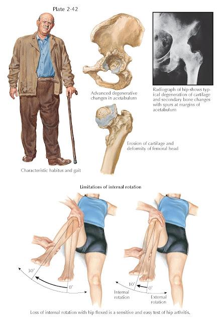 HIP JOINT INVOLVEMENT IN OSTEOARTHRITIS