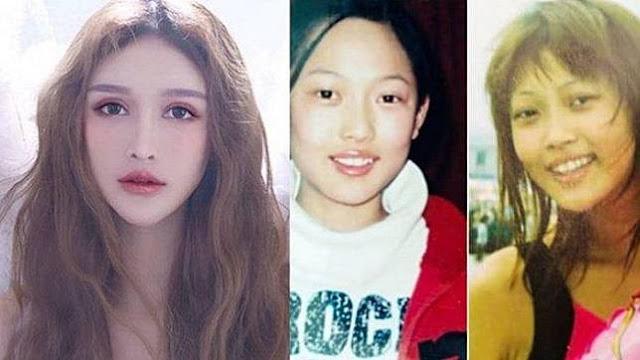 Jadi Cantik Setelah 100 Kali Operasi Plastik Senilai Rp 8 Miliar, Lihat Foto Masa Lalu Gadis Ini