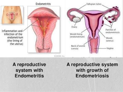Endometritis Treatment