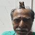 Homem com chifre de 10 centímetros é caso raro na medicina