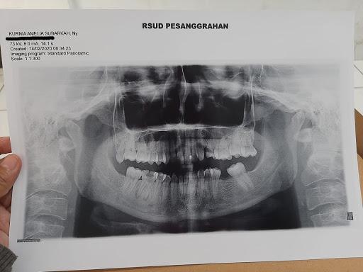 Operasi Kista Gigi Kurnia Amelia