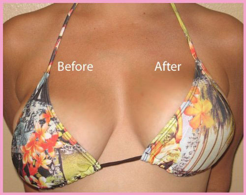 The Best Breast Augmentation