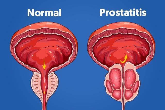 tamaño de próstata derecho 47 años
