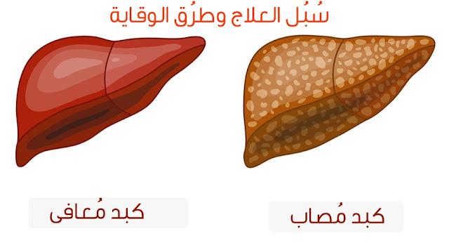 دهون الكبد واضرارها