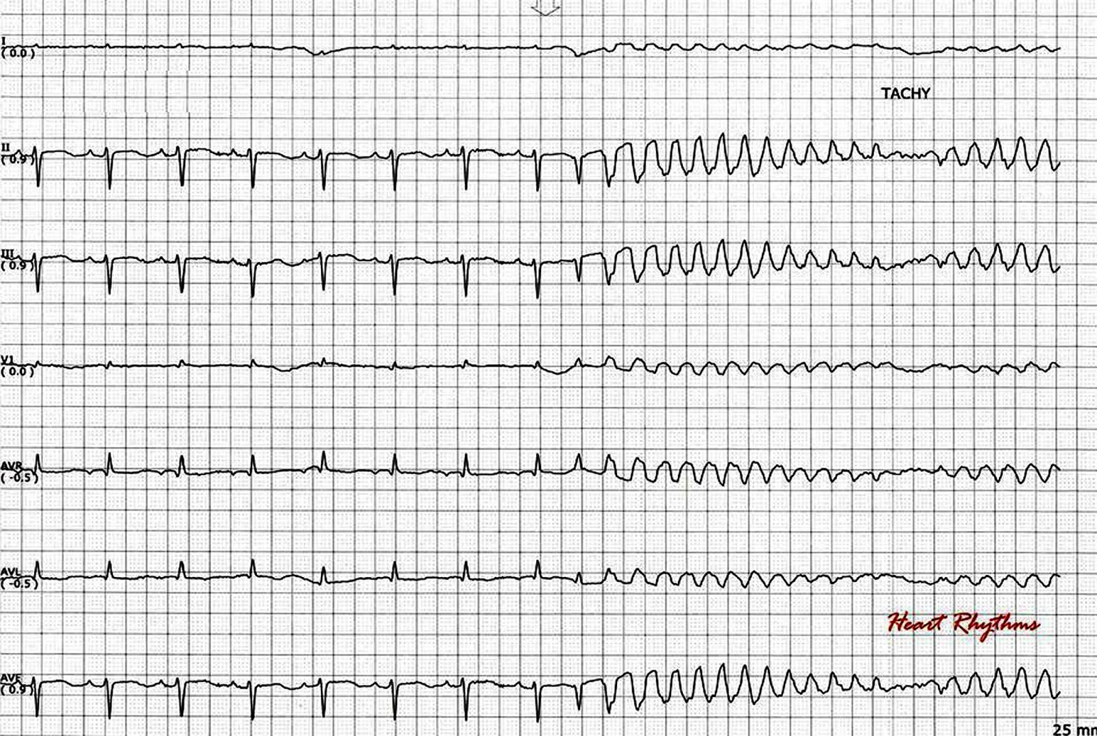 an introduction to the analysis of ventricular tachycardia Ventricular tachycardia  the analysis of the qrs morphology gives an idea of the  catheter ablation of idiopathic ventricular tachycardia arising from the .