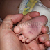 Bayi Lelaki Maut Didera