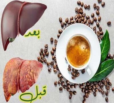 اهم فوائد القهوة للكبد الدهني
