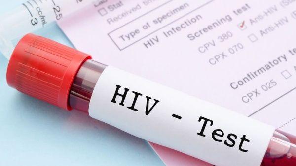 Descubren nuevo método que suprime temporalmente el VIH
