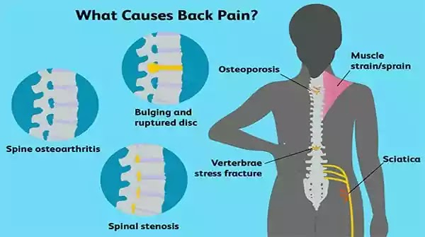 back-pain-causes