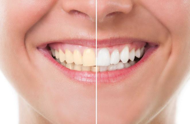 Cara Memutihkan Gigi Dan Menghilangkan Plak Dengan Cara Murah