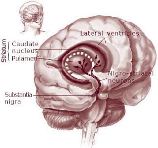 Tahukah Anda, Apa Penyakit Parkinson itu?