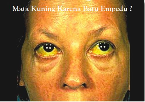 mata kuning karena batu empedu