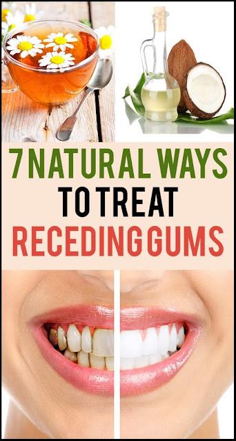 7 Natural Ways To Treat Receding Gums