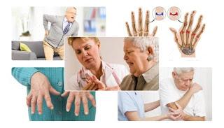 Obat rematik kronis | Pilihan Obat yang Efektif Atasi Nyeri Sendi dan Nyeri Otot |