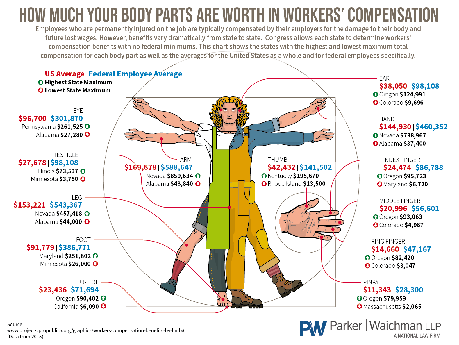 How Much Your Body Parts Are Worth In Workers' Compensation #Infographic